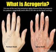 acrogeria