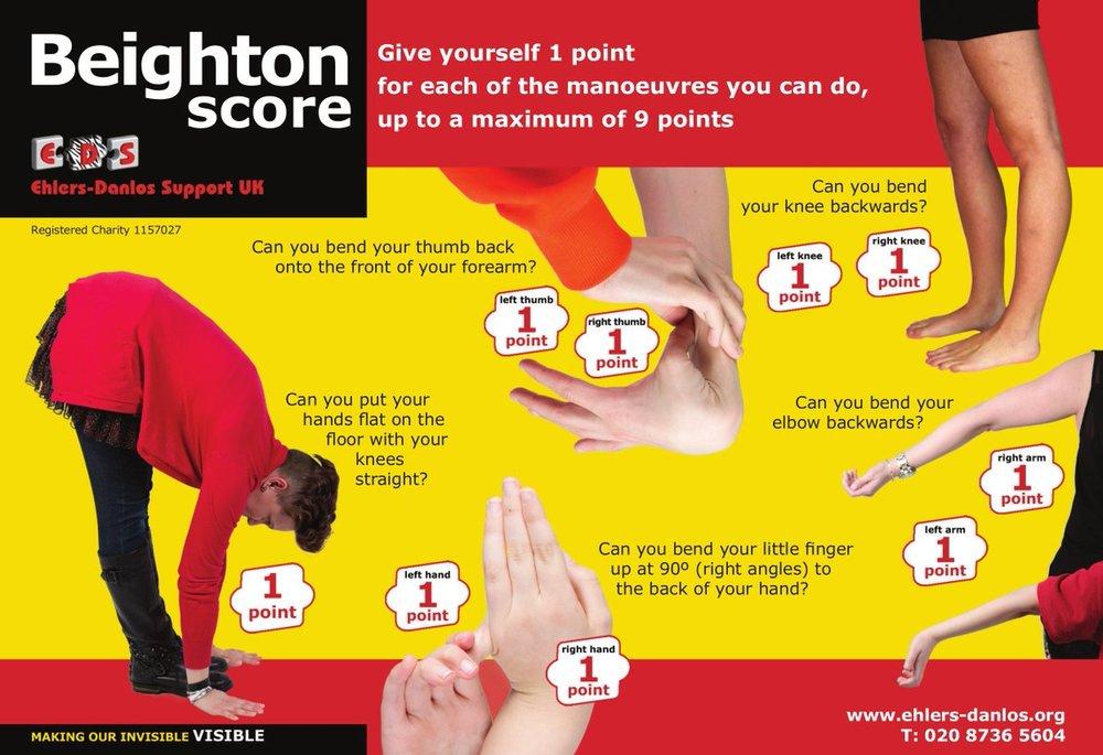 Beighton's score - EDS