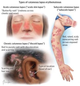 lupus rash.jpg